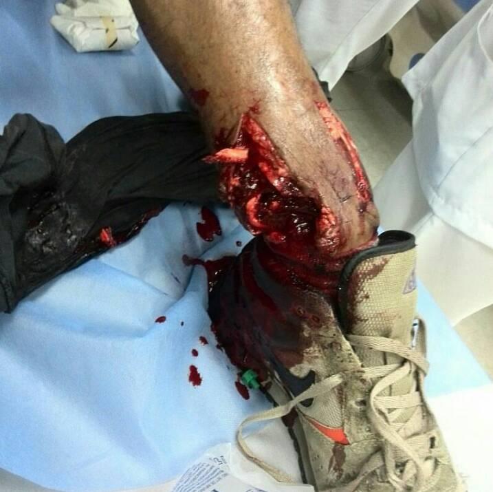 Heridos Baruta 1