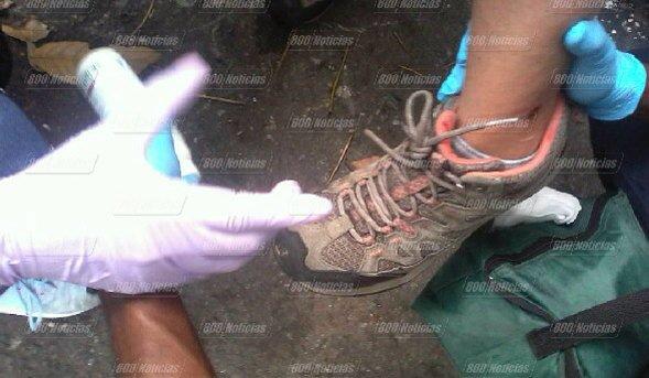 Mildred Manrique herida con perdigones en el tobillo 2